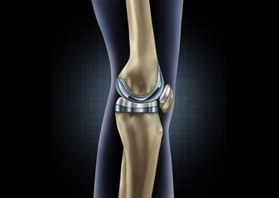 Depuy Attune Knee Implant