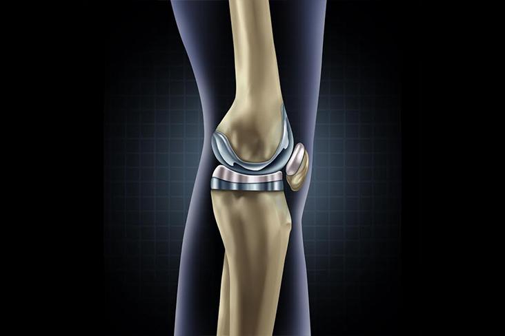 Maine Depuy Attune Knee Implant Lawsuit Lawyer