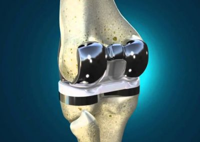 Exactech Optetrak Knee Implant