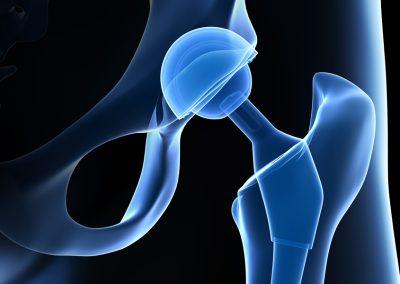 Zimmer M/L Taper & Kinectiv Hip Implants